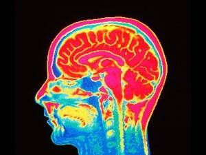 brainscan-TA.jpg